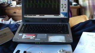 O Scope look at a simple Monopole Pulse Motor